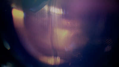 Light Flares 11